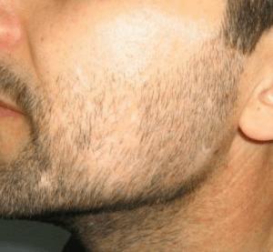 Beard Transplant Before