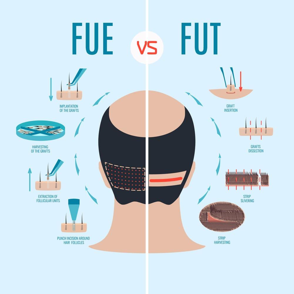 FUE vs FUT in hair transplant methods-min