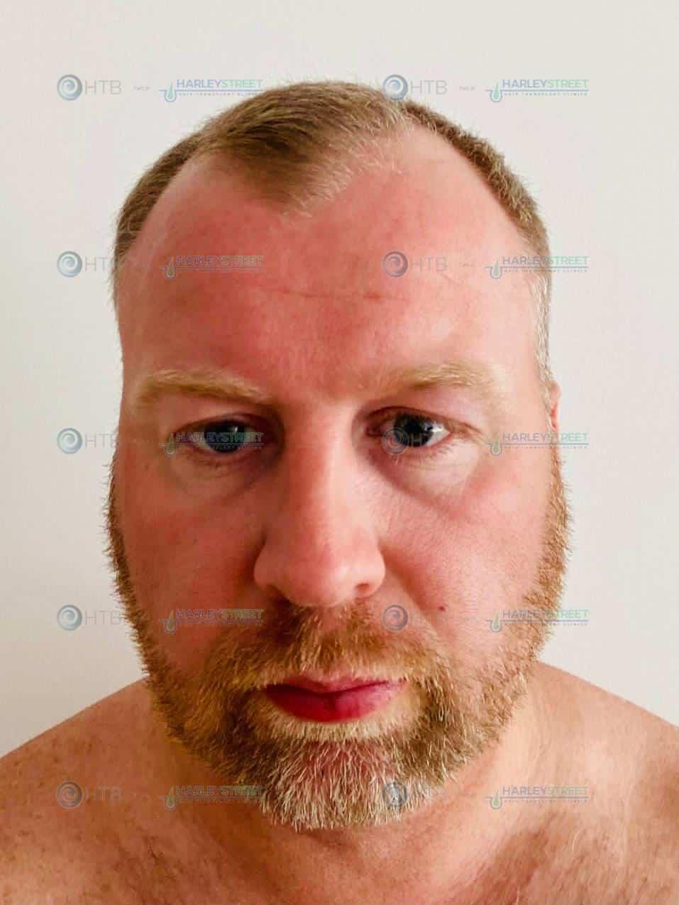 Hair Transplant Birmingham of HSHTC client before procedure