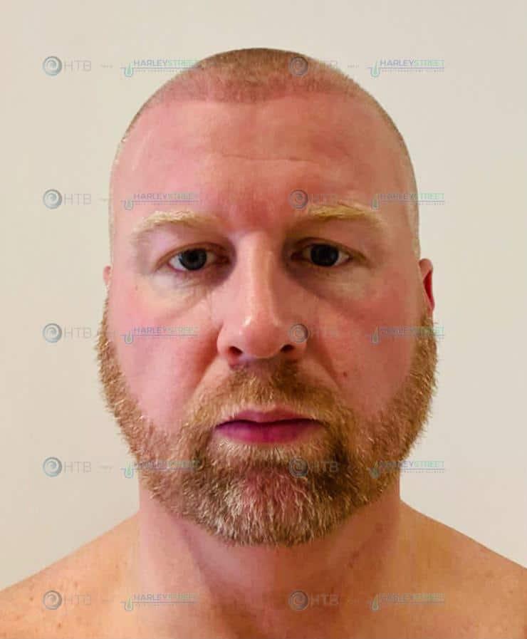 Hair Transplant Birmingham of HSHTC client post procedure