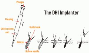 dhi-hair-transplant-method-tool-300x178