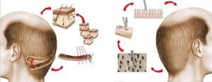 hair-transplant-procedures-300x116